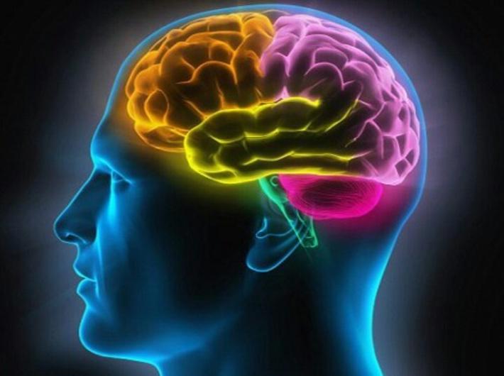 cerebro1a